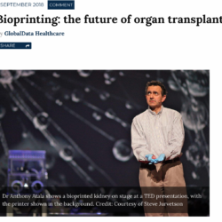 Bioprinting: the future of organ transplant